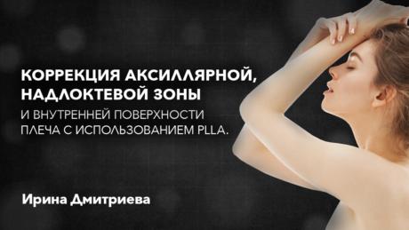 Коррекция аксиллярной, надлоктевой зоны и внутренней поверхности плеча с использованием PLLA. Спикер: Ирина Дмитриева